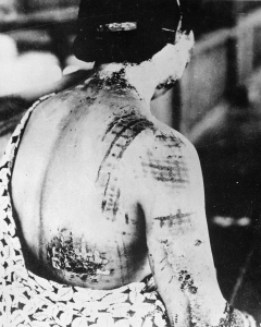 Seeing images like this one of a woman whose skin has the patterns of her kimono burned onto it, it's not surprising why people began to question the utility of the atomic bomb.
